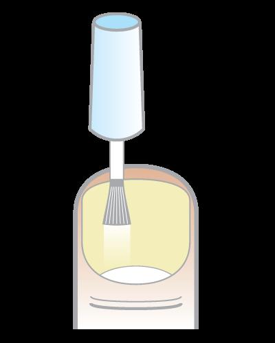 Bestes Mittel gegen Nagelpilz – Anwendung - Schritt 2