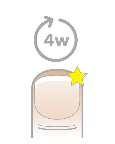 Bestes Mittel gegen Nagelpilz – Anwendung - Schritt 3