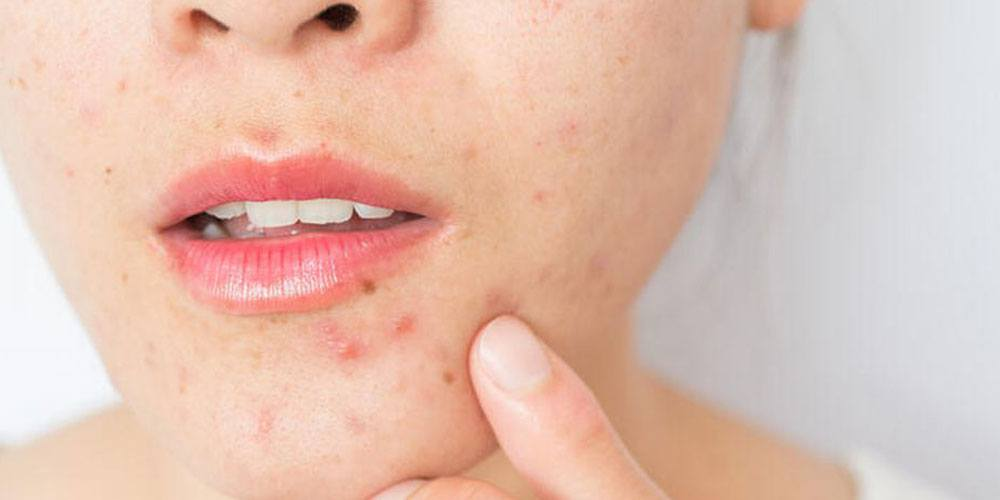 Acne (maskné) door mondkapjes | 5 tips tegen puistjes