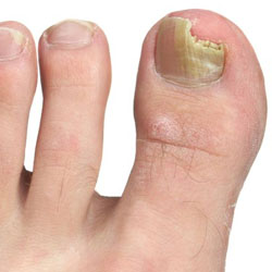 Example 1: picture of an infected nail