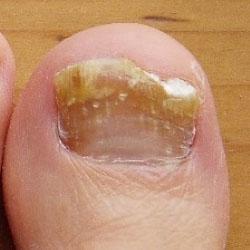 Beispiel 12: Verschiedene Formen von Nagelpilz