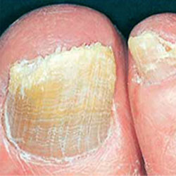 Example 2: picture of an infected nail