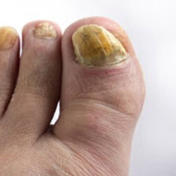 Example 4: picture of an infected nail