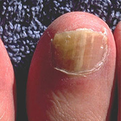 Example 5: picture of an infected nail