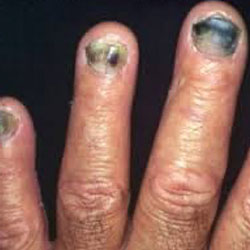 Example 6: picture of an infected nail