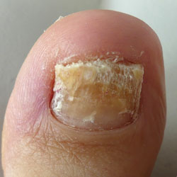 Example 8: picture of an infected nail