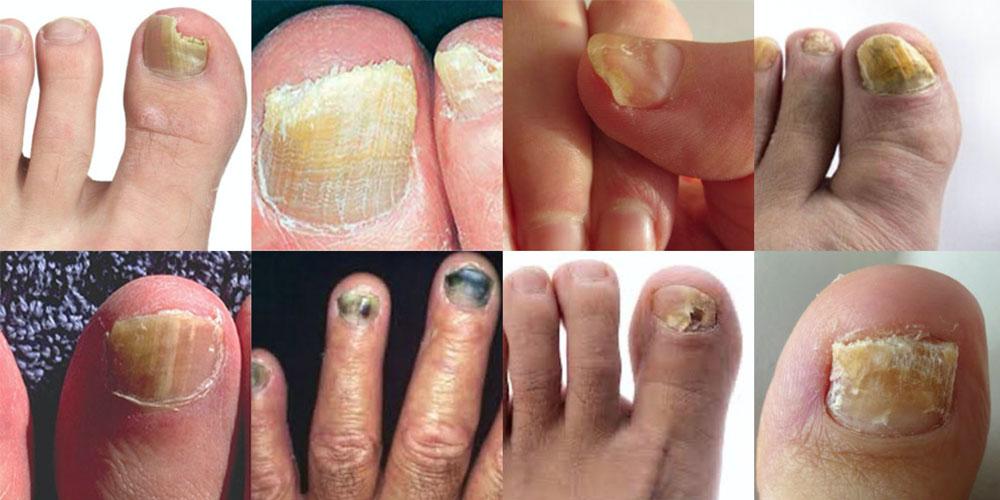 Kalknagel behandelen | Informatie & advies over behandeling