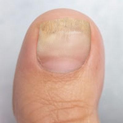 Fungal nail 3