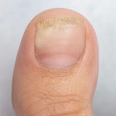 Fungal nail 5