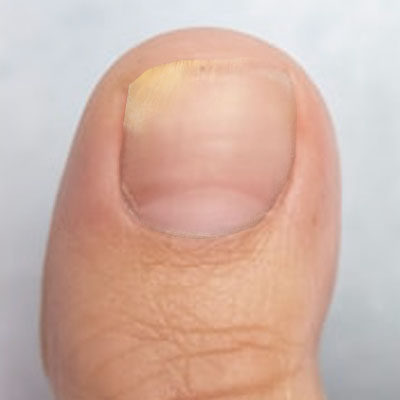 Fungal nail 7