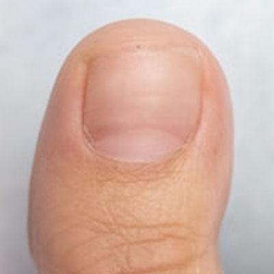 Fungal nail 8