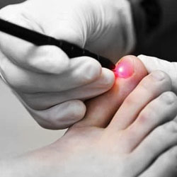 Laser treatment against fungal nail