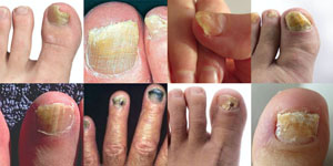 Fungal nail infection | Diagnose & advice 2020