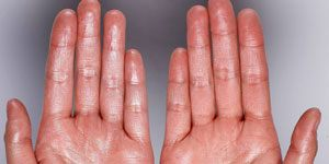 Hyperhidrose Behandlung | Übermäßiges Schwitzen: Diagnose und Behandlung