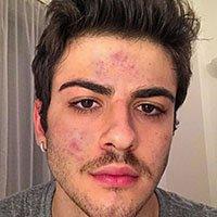 acne picture 1