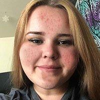 acne picture 4