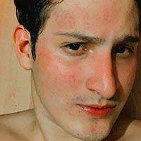 acne picture 6