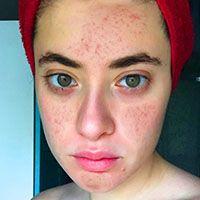 acne picture 7